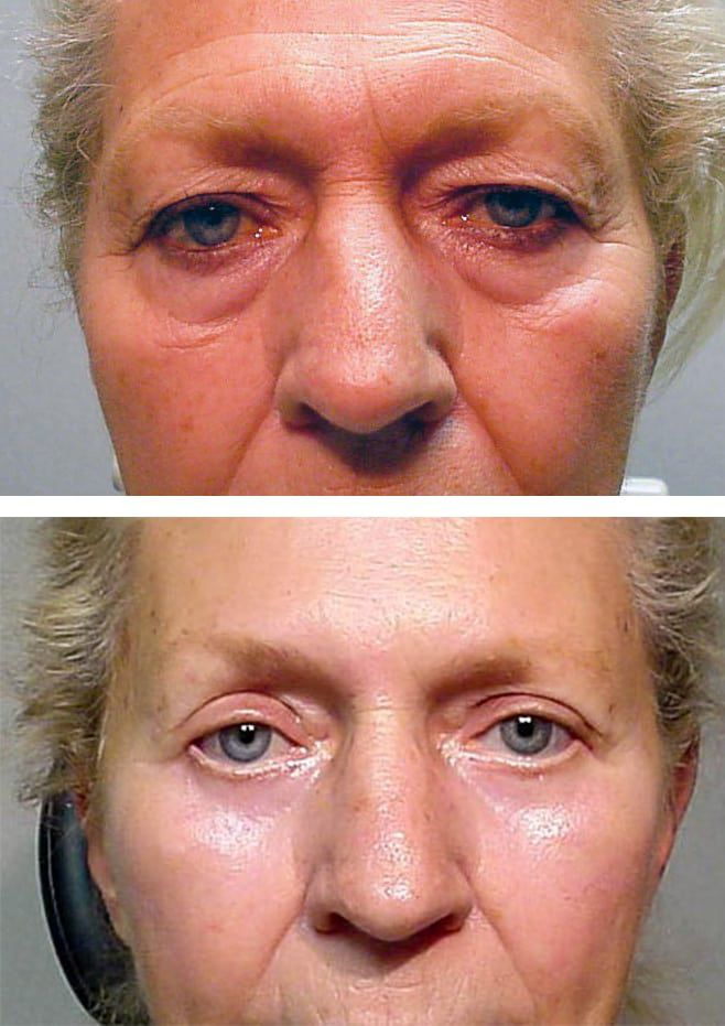 Blepharoplasty Dallas Ophthalmology Surgeons Texas Ophthalmic