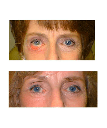 Patient 1 Ectropion After Lower Blepharoplasty