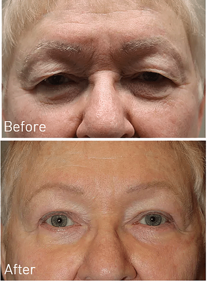 Upper Eyelid Blepharoplasty Gallery Dallas Ophthalmology