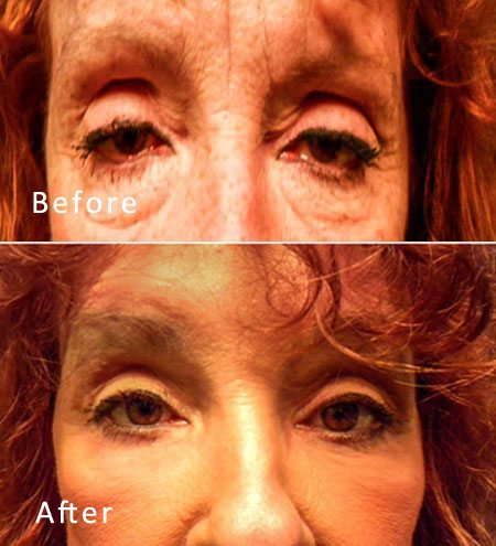 Best Dallas Blepharoplasty